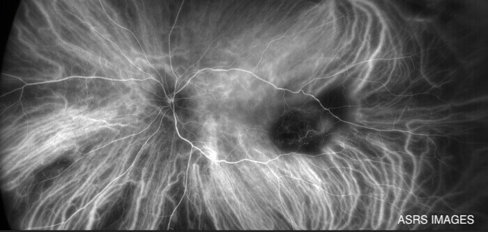 Indocyanine Green Angiography