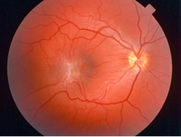 macular pucker with macular dragging