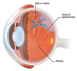 vitreous fluid entering retinal tear, causing retinal detachment